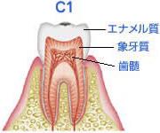 エナメル質の虫歯(C1)