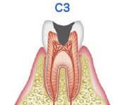 歯髄の虫歯(C3)