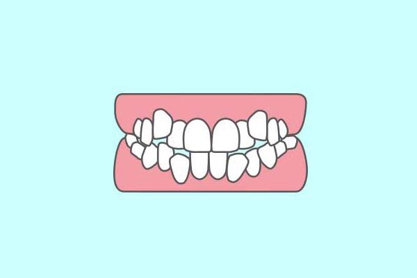 歯がガタガタに並んでいる(叢生:そうせい)