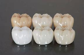 白くて固い材料『ジルコニア』の有用性について|兵庫県川西市の歯科「市川歯科医院」