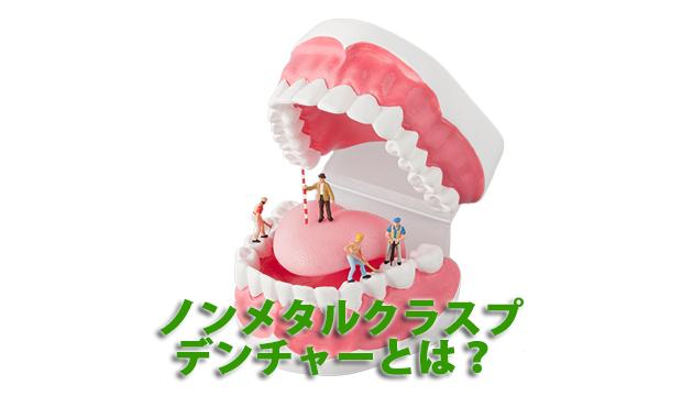 ノンメタルクラスプデンチャーとは?|兵庫県川西市の歯科「市川歯科医院」