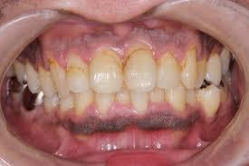 たばこ害を歯科の点から考える|兵庫県川西市の歯科「市川歯科医院」