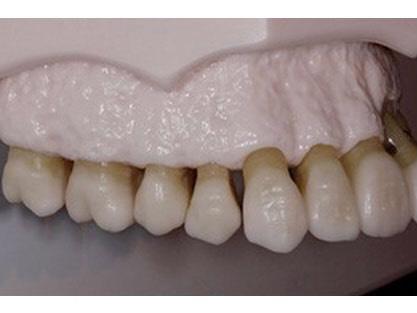 健康な歯槽骨