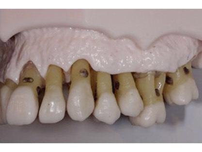 歯周病の進行した歯槽骨